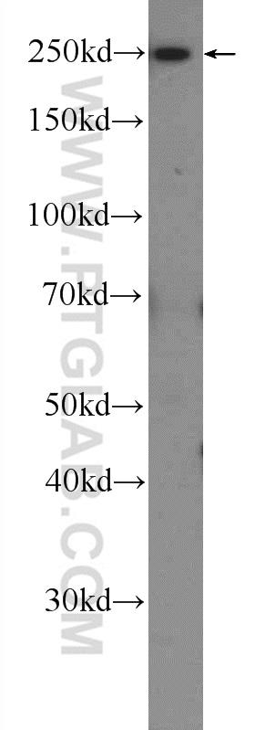 HeLa cells were subjected to SDS PAGE followed by western blot with 25155-1-AP( ATG2B Antibody) at dilution of 1:600  incubated at room temperature for 1.5 hours