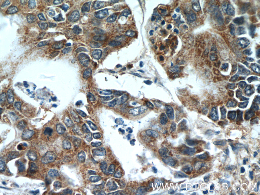 Immunohistochemistry of paraffin-embedded human pancreas cancer tissue slide using 25155-1-AP( ATG2B Antibody) at dilution of 1:50 (under 40x lens)