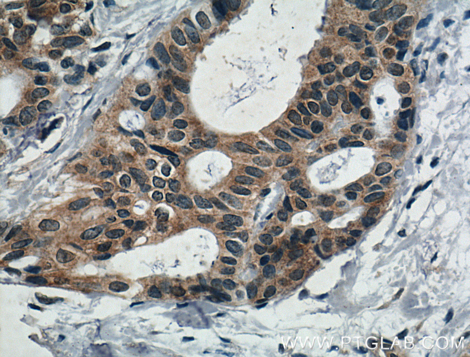 Immunohistochemistry of paraffin-embedded human breast cancer tissue slide using 26677-1-AP( IL5 Antibody) at dilution of 1:200 (under 40x lens). heat mediated antigen retrieved with Tris-EDTA buffer(pH9).