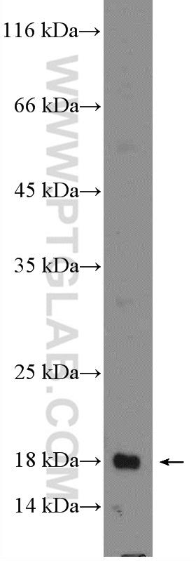 Jurkat cells were subjected to SDS PAGE followed by western blot with 26757-1-AP( LIF Antibody) at dilution of 1:300  incubated at room temperature for 1.5 hours