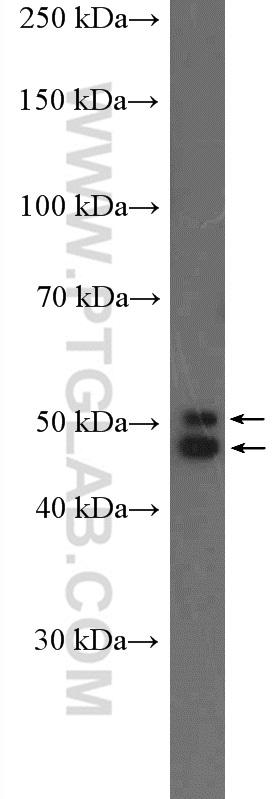 mouse brain tissue were subjected to SDS PAGE followed by western blot with 26975-1-AP( NeuN Antibody) at dilution of 1:1000  incubated at room temperature for 1.5 hours