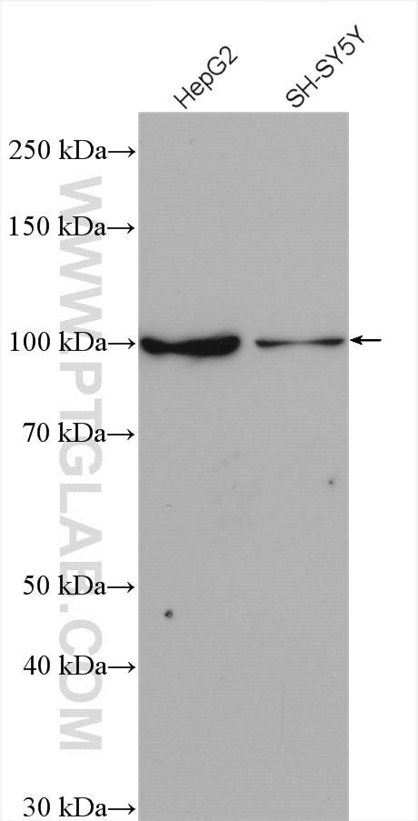 Various lysates were subjected to SDS PAGE followed by western blot with 26995-1-AP (WFS1 antibody) at dilution of 1:2000 incubated at room temperature for 1.5 hours