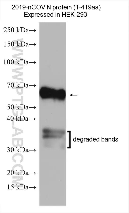SARS-CoV-2 Nucleocapsid Phosphoprotein with the domain 1-419aa expressed in HEK-293 cells were subjected to SDS PAGE followed by western blot with 28769-1-AP (2019-nCOV nucleocapsid phosphoprotein antibody) at dilution of 1:1000 incubated at room temperature for 1.5 hours.