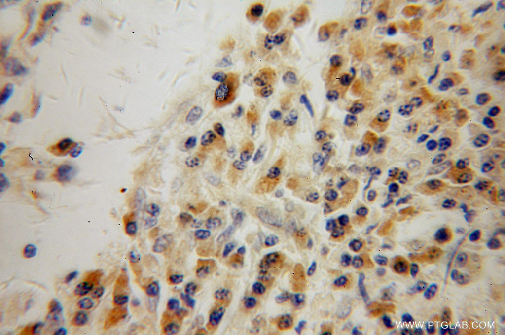 Immunohistochemical of  paraffin-embedded human lung cancer using 51045-1-AP(SIK1 antibody) at dilution of 1:100 (under 40x lens)