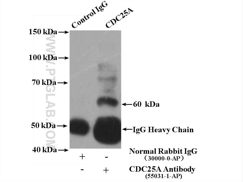 IP Result of anti-CDC25A (IP:55031-1-AP, 4ug; Detection:55031-1-AP 1:300) with HeLa cells lysate 4000ug.