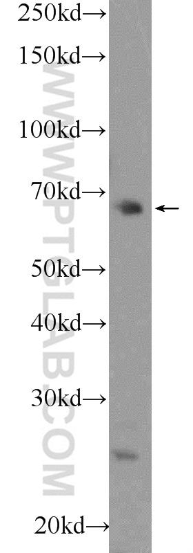 HEK-293 cells were subjected to SDS PAGE followed by western blot with 55176-1-AP( FBXO43 Antibody) at dilution of 1:300  incubated at room temperature for 1.5 hours