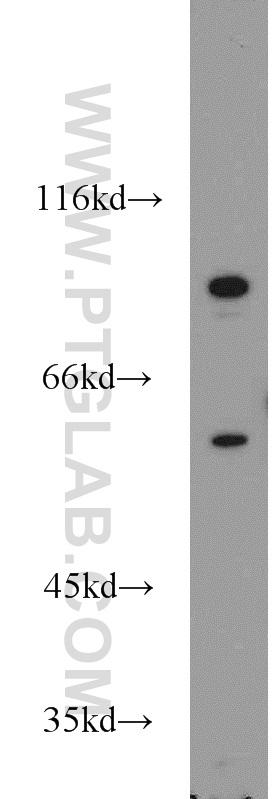 COLO 320 cells were subjected to SDS PAGE followed by western blot with 55206-1-AP(PCSK9 antibody) at dilution of 1:500  incubated at room temperature for 1.5 hours