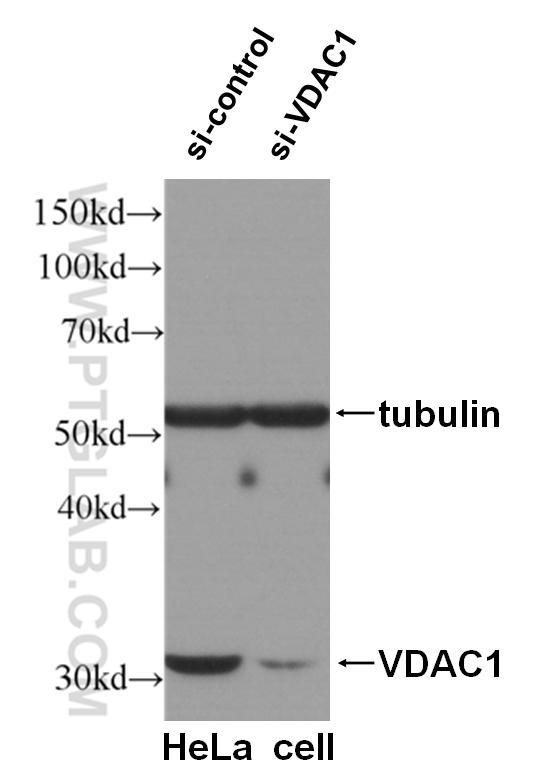 WB result of VDAC1 antibody (55259-1-AP, 1:2000) with si-Control and si-VDAC1 transfected HeLa cells.