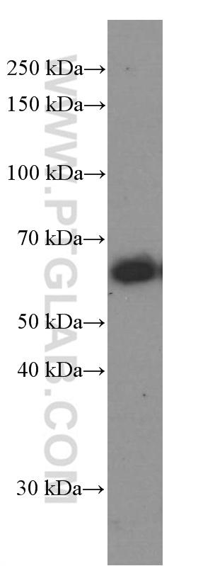 K-562 cells were subjected to SDS PAGE followed by western blot with 60042-1-Ig( CXCR4 Antibody) at dilution of 1:1000  incubated at room temperature for 1.5 hours