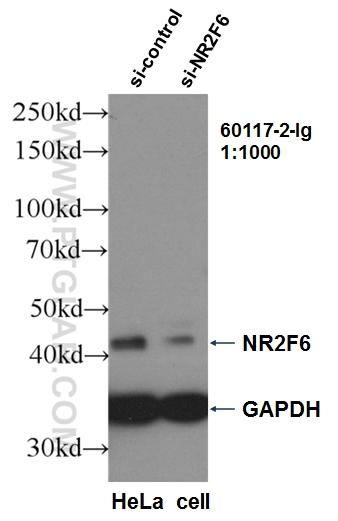 WB result of NR2F6 antibody (60117-2-Ig, 1:1000) with si-Control and si-NR2F6 transfected HeLa cells.