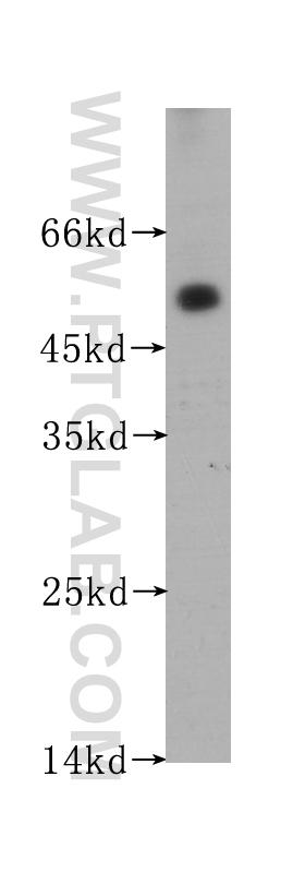 human testis tissue were subjected to SDS PAGE followed by western blot with 60176-1-Ig(ACPP antibody) at dilution of 1:400  incubated at room temperature for 1.5 hours