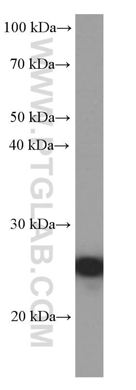 Jurkat cells were subjected to SDS PAGE followed by western blot with 60178-1-Ig( BCL2 Antibody) at dilution of 1:4000  incubated at room temperature for 1.5 hours