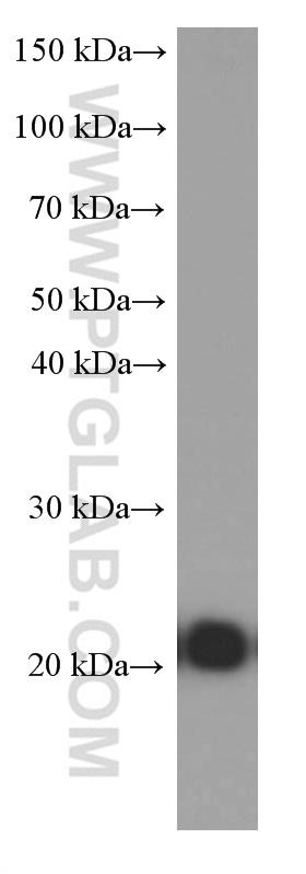 Jurkat cells were subjected to SDS PAGE followed by western blot with 60181-1-Ig( CD3E Antibody) at dilution of 1:10000  incubated at room temperature for 1.5 hours