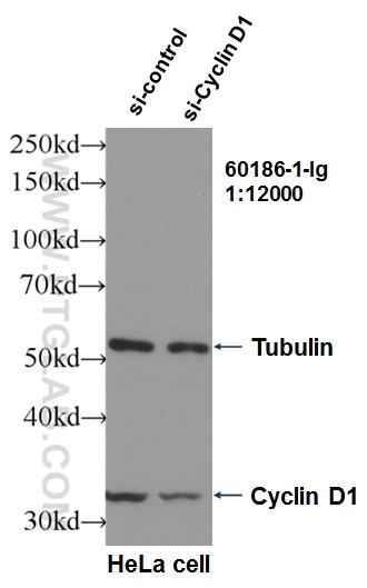 WB result of Cyclin D1 antibody (60186-1-Ig, 1:12,000) with si-Control and si-Cyclin D1 transfected HeLa cells.