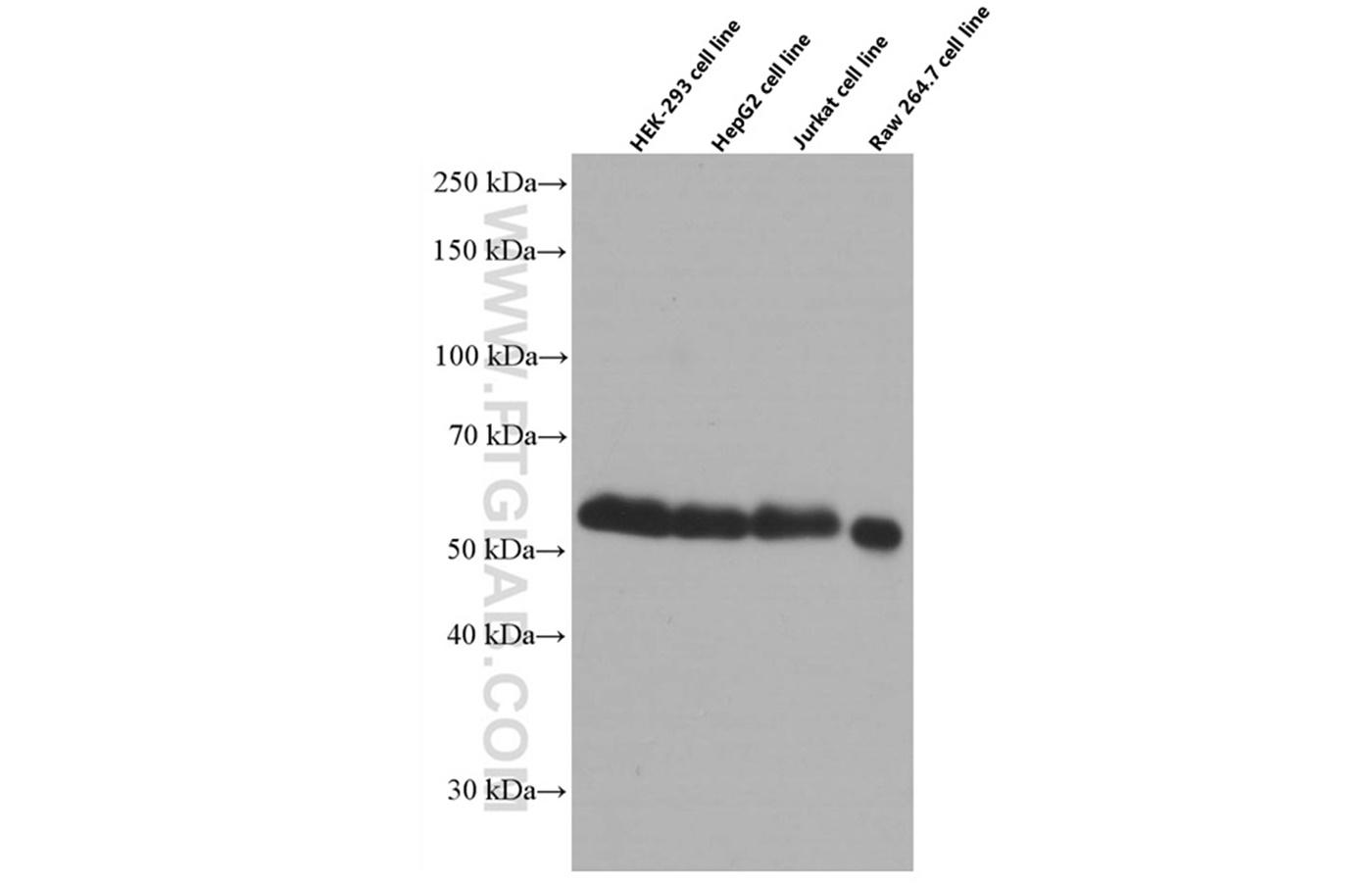 various lysates were subjected to SDS PAGE followed by western blot with 60188-1-Ig (WTAP antibody) at dilution of 1:5000  incubated at room temperature for 1.5 hours