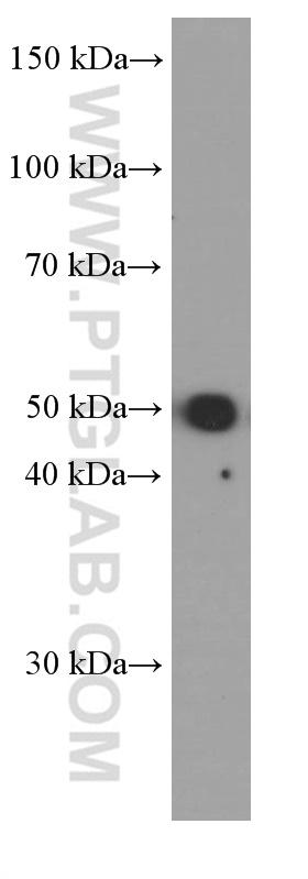 HEK-293 cells were subjected to SDS PAGE followed by western blot with 60188-1-Ig( WTAP Antibody) at dilution of 1:2000  incubated at room temperature for 1.5 hours