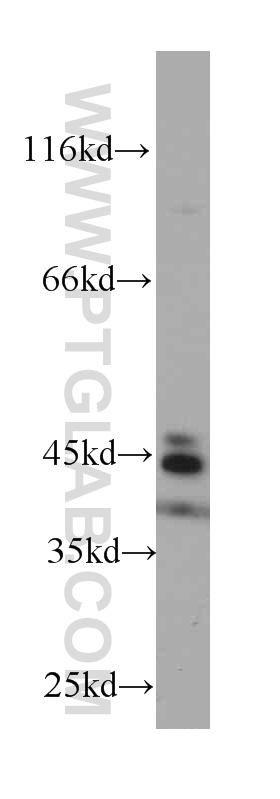 Raji cells were subjected to SDS PAGE followed by western blot with 60208-1-Ig(CD23,FCER2 antibody) at dilution of 1:1000  incubated at room temperature for 1.5 hours