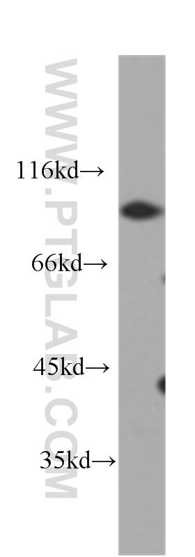 HeLa cells were subjected to SDS PAGE followed by western blot with 60224-1-Ig(CD44 antibody) at dilution of 1:1000  incubated at room temperature for 1.5 hours
