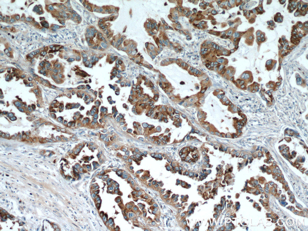 Immunohistochemical of  paraffin-embedded human lung cancer using 60259-1-Ig(NAPSA antibody) at dilution of 1:50 (under 10x lens)