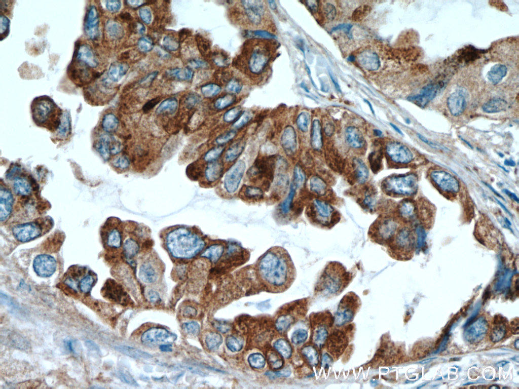 Immunohistochemical of  paraffin-embedded human lung cancer using 60259-1-Ig(NAPSA antibody) at dilution of 1:50 (under 40x lens)