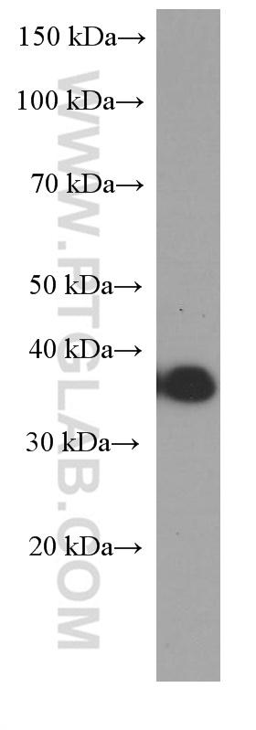 Raji cells were subjected to SDS PAGE followed by western blot with 60271-1-Ig( MS4A1,CD20 Antibody) at dilution of 1:8000  incubated at room temperature for 1.5 hours