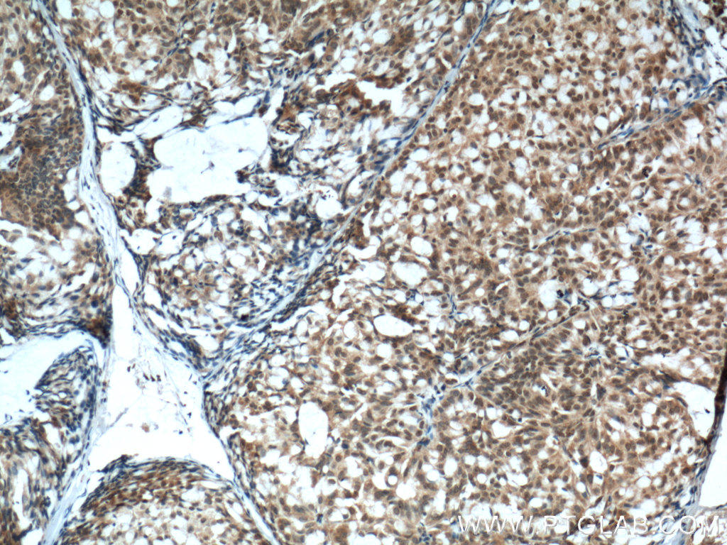 Immunohistochemistry of paraffin-embedded human breast hyperplasia tissue slide using 60300-1-Ig( PTEN Antibody) at dilution of 1:600 (under 10x lens). heat mediated antigen retrieved with Tris-EDTA buffer(pH9).
