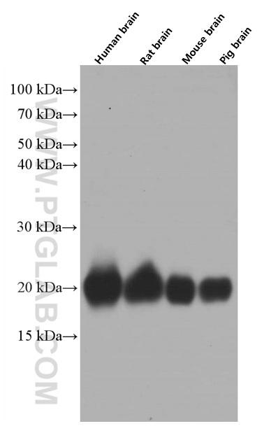 Various lysates were subjected to SDS PAGE followed by western blot with 60309-1-Ig( pan Ras Antibody) at dilution of 1:50000  incubated at room temperature for 1.5 hours
