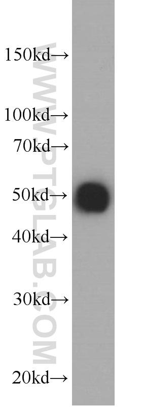 Recombinant protein were subjected to SDS PAGE followed by western blot with 66006-1-Ig( HA-tag Antibody) at dilution of 1:20000  incubated at room temperature for 1.5 hours