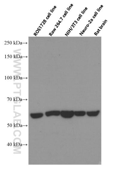 Western blot analysis of HSP60 in various tissues and cell lines with 66041-1-Ig (HSP60 Antibody) at dilution of 1:20000  incubated at room temperature for 1.5 hours