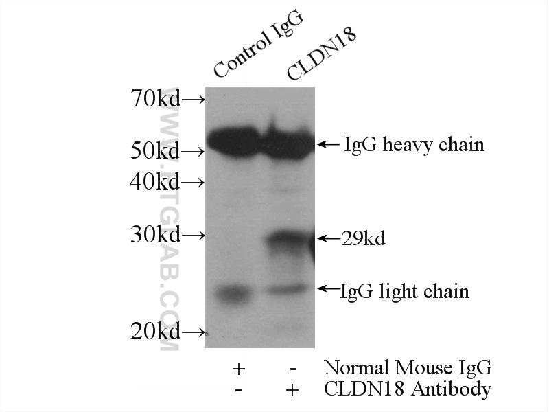 IP Result of anti-CLDN18 (IP:66167-1-Ig, 3ug; Detection:66167-1-Ig 1:300) with mouse stomach tissue lysate 4000ug.