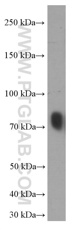 human plasma tissue were diluted two fold and subjected to SDS PAGE followed by western blot with 66171-1-Ig( TF Antibody) at dilution of 1:16000  incubated at room temperature for 1.5 hours