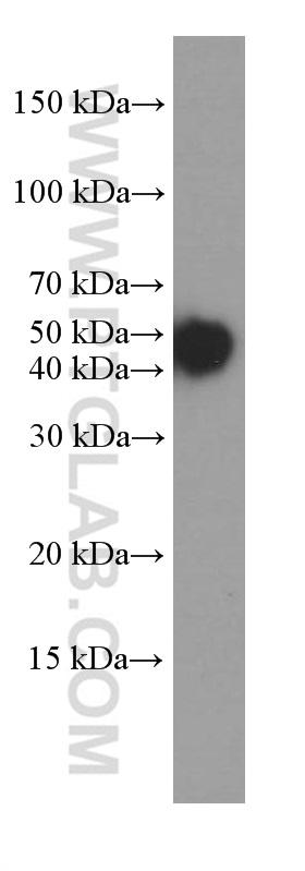 HeLa cells were subjected to SDS PAGE followed by western blot with 66187-1-Ig( KRT18 Antibody) at dilution of 1:20000  incubated at room temperature for 1.5 hours
