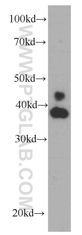 HeLa cells were subjected to SDS PAGE followed by western blot with 66192-1-Ig( ERK1/2 Antibody) at dilution of 1:1000  incubated at room temperature for 1.5 hours