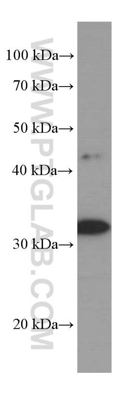 pig stomach tissue were subjected to SDS PAGE followed by western blot with 66244-1-Ig( CNN2 Antibody) at dilution of 1:2000  incubated at room temperature for 1.5 hours