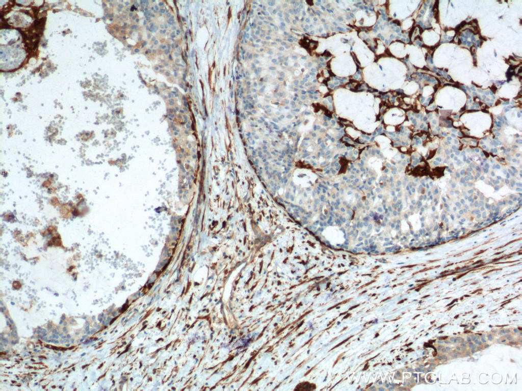 Immunohistochemistry of paraffin-embedded human breast hyperplasia tissue slide using 66244-1-Ig( CNN2 Antibody) at dilution of 1:2000 (under 10x lens). heat mediated antigen retrieved with Tris-EDTA buffer(pH9).