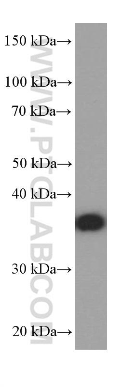 Neuro-2a cells were subjected to SDS PAGE followed by western blot with 66254-1-Ig( PHOX2B Antibody) at dilution of 1:2500  incubated at room temperature for 1.5 hours
