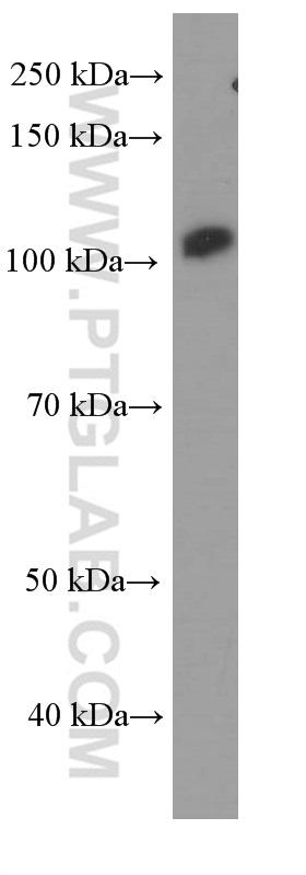 MCF-7 cells were subjected to SDS PAGE followed by western blot with ( FAK Antibody) at dilution of 1:1000  incubated at room temperature for 1.5 hours
