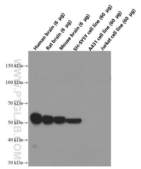 Western blot analysis of TUBB3 in various tissues and cell lines with 66375-1-Ig (TUBB3-specific Antibody) at dilution of 1:40,000  incubated at room temperature for 1.5 hours