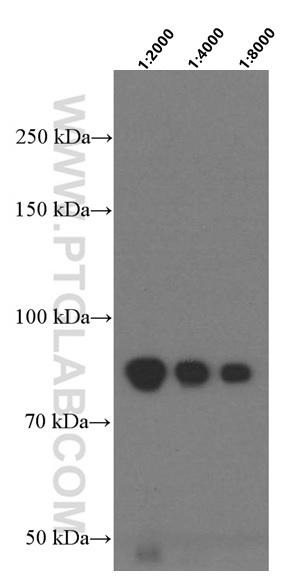 human plasma tissue were subjected to SDS PAGE followed by western blot with 66509-1-Ig (F2 antibody) at various dilutions incubated at room temperature for 1.5 hours