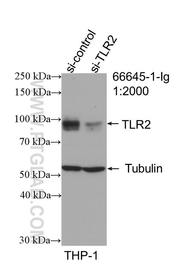 WB result of TLR2 antibody (66645-1-Ig; 1:2000; incubated at room temperature for 1.5 hours) with sh-Control and sh-TLR2 transfected THP-1 cells.
