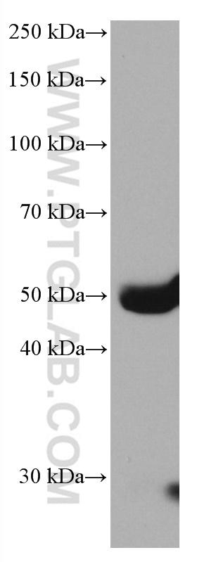 human plasma were subjected to SDS PAGE followed by western blot with 66753-1-Ig (Factor X antibody) at dilution of 1:10000 incubated at room temperature for 1.5 hours.