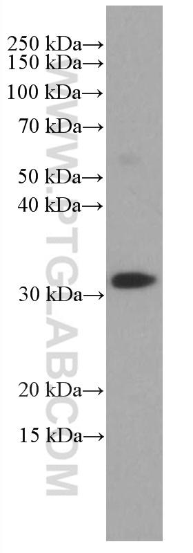 Human peripheral blood leukocyte cells were subjected to SDS PAGE followed by western blot with 66868-1-Ig (CD8 antibody) at dilution of 1:4000 incubated at room temperature for 1.5 hours