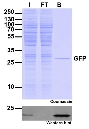 Immunoprecipitation of GFP with GFP-Trap Agarose beads. I: Input, FT: Flow-Through, B: Bound
