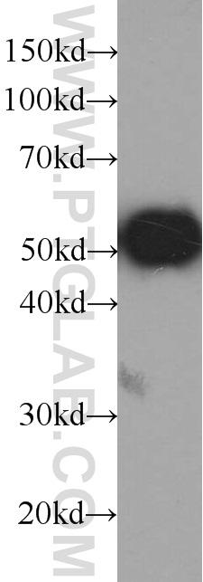 Recombinant protein were subjected to SDS PAGE followed by western blot with HRP-66002(GFP tag Antibody) at dilution of 1:10000