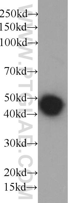 Recombinant protein were subjected to SDS PAGE followed by western blot with HRP-66005(6*His, His-Tag Antibody) at dilution of 1:10000
