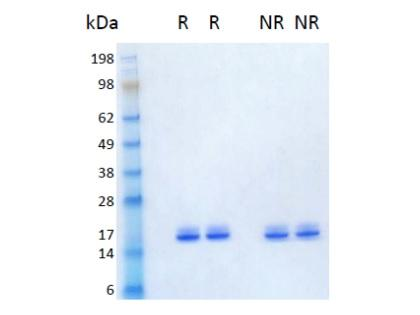 The protein was resolved by SDS- polyacrylamide gel electrophoresis and the gel was stained with Coomassie blue. R represents reducing conditions and NR represents non-reducing conditions.