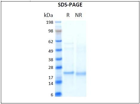The protein was resolved by SDS-polyacrylamide gel electrophoresis and the gel was stained with Coomassie blue. R represents reducing conditions and NR represents non-reducing conditions.