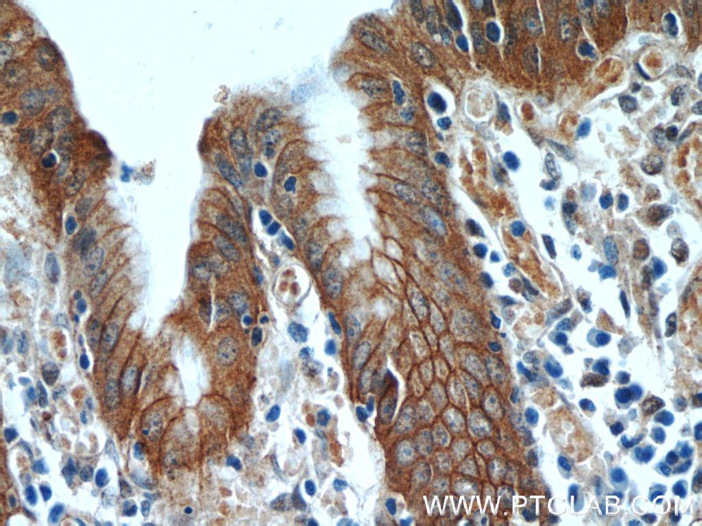 希釈倍率1:50でαEカテニン抗体(品番:12831-1-AP)を使用したパラフィン包埋ヒト胃組織スライドの免疫組織化学染色(40倍レンズ)。