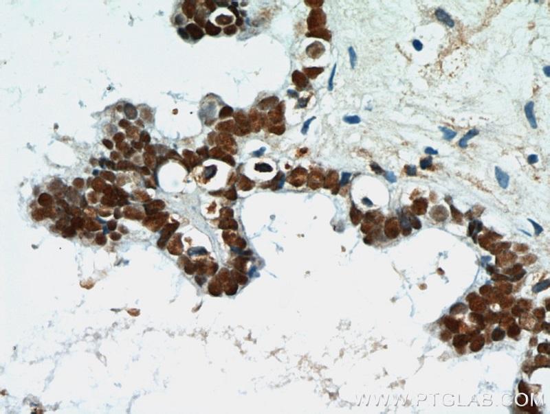 PAX8抗体(品番:10336-1-AP、1:50希釈)を使用したパラフィン包埋したヒト卵巣腫瘍の免疫組織化学染色
