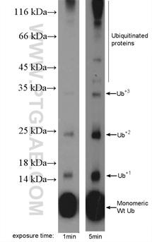 MDA-MB-453s細胞をSDS-PAGE後、ユビキチン抗体 (カタログ番号: 10201-2-AP、希釈倍率 1:600) を用いてウェスタンブロットを行った